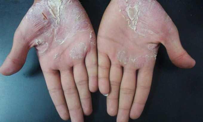 Комплексное лечение назначается при псориазе
