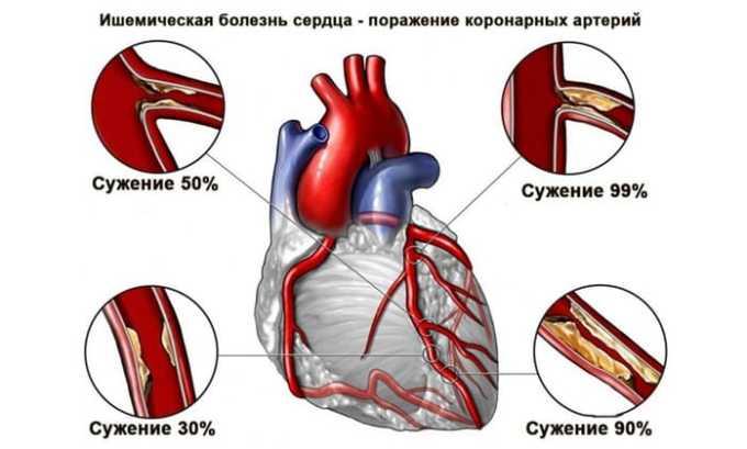 Лекарственное средство применяют в профилактике и лечении ишемической болезни сердца