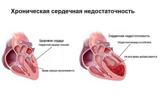 Эгилок Ретард назначают при хронической сердечной недостаточности