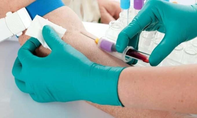 После терапии важно постоянно следить за своим состоянием, сдавать анализы, в том числе и кровь из вены на гормоны