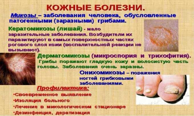 Лекарственное средство назначают при патологии кожи