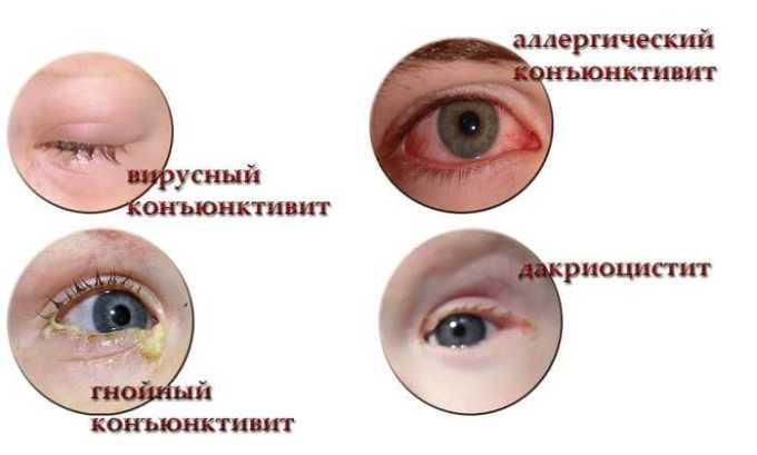 Медикамент применяется при конъюнктивите