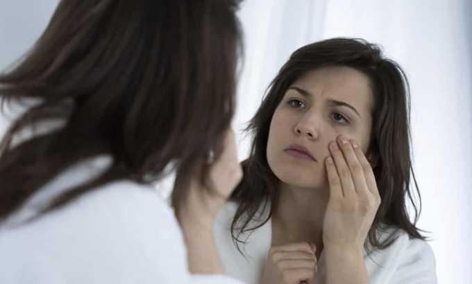 Чаще всего мешки под глазами являются симптомом послеродового тиреоидита