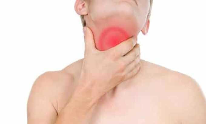 Подострый тиреоидит может появиться после вирусных болезней, таких, как паротит, ОРВИ, коксаки