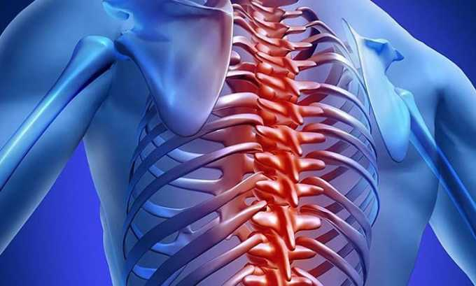 Многие патологии лечатся препаратом Диклофенак 50, например болезни позвоночника воспалительного и дегенеративного характера (остеоартроз, остеохондроз, радикулит)