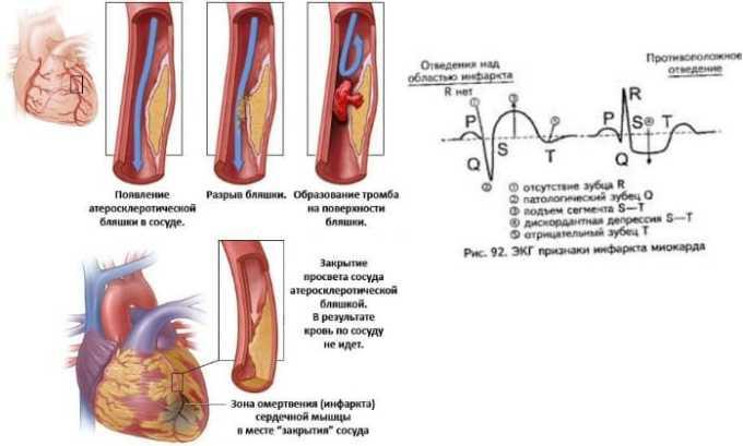 Врачи не назначают Эгилок при остром инфаркте миокарда