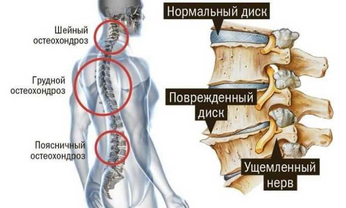 Диклофенак Акри назначается при различных заболевания позвоночника