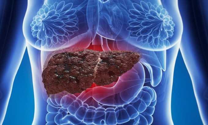 Также препарат рекомендуют использовать при патологическом процессе в печени