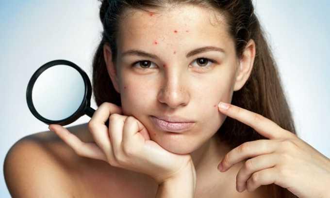 Препарат Вобэнзим применяют при угревой сыпи, дерматитах