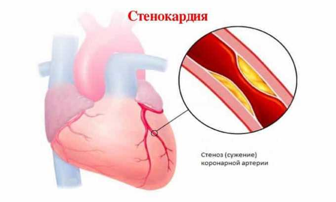 Препарат снимает приступы стенокардии