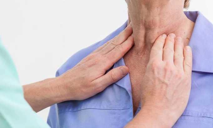 При фолликулярном раке щитовидной железы в редких случаях наблюдается увеличение лимфатического узла