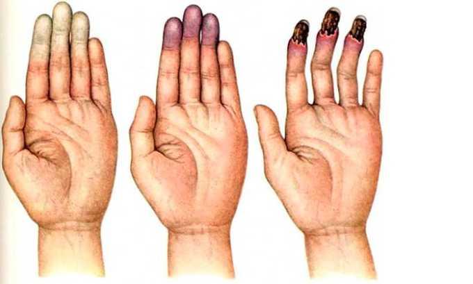 Сорбилакт применяют для улучшения микроциркуляционных процессов и кровотока при болезни Рейно