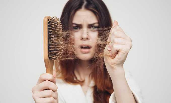 Выпадение волос зачастую связано с проблемами щитовидной железы
