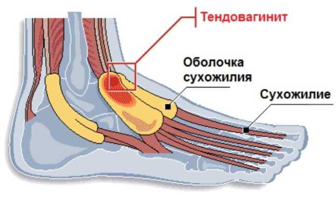 Диклофенак назначают при тендовагините