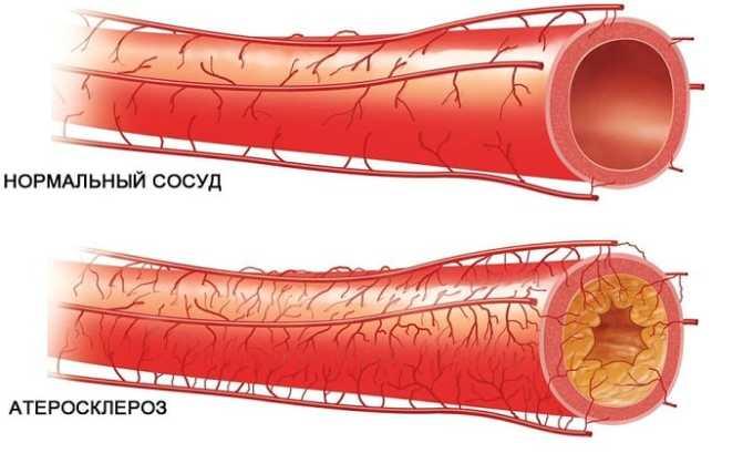 Препарат Вобэнзим применяют при атеросклерозе сосудов