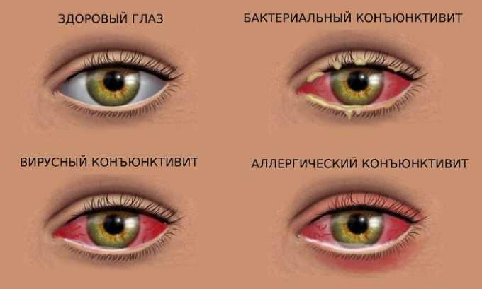Лекарственное вещество показано при хронических и острых неинфекционных болезнях глаз - кератиты, конъюнктивиты, блефариты, кератоконъюнктивиты, блефароконъюнктивиты, склериты и эписклериты