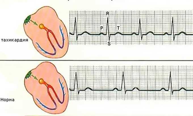 При высоком содержании гормона щитовидной железы развивается тахикардия