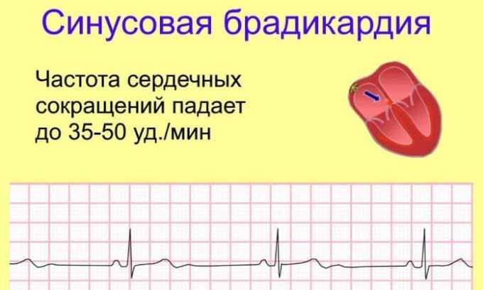 При синусовой брадикардии препарат не назначается