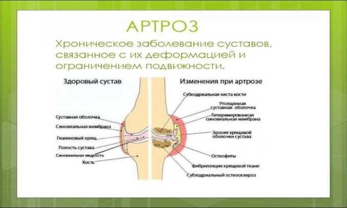 Диклофенак применяют для лечения артроза