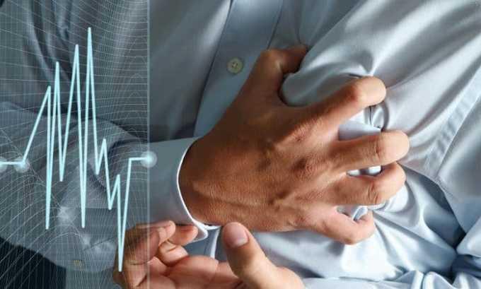 Лечение Преднизолоном может привести к аритмии