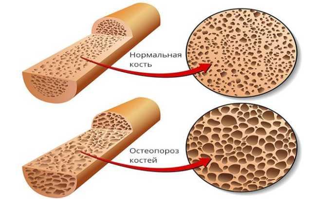 Противопоказанием к применению преднизолона является наличие остеопороза, септического артрита, остеоартроза и т.д