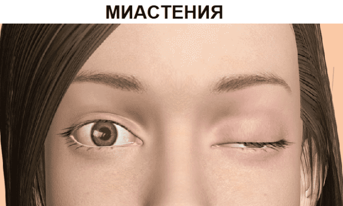 Миастения является симптомом передозировки лекарством