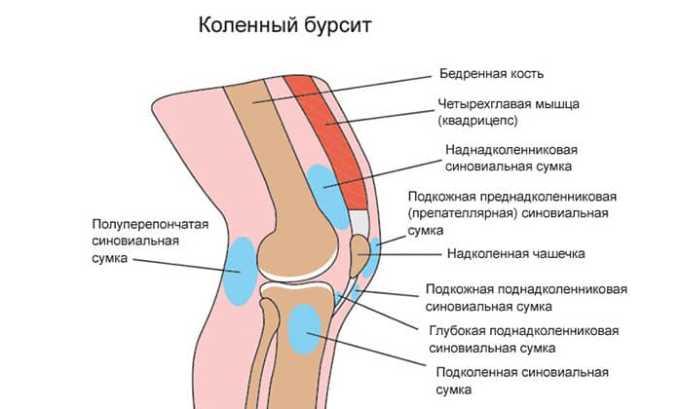 Ортофен показан при бурсите