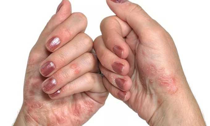 Со стороны кожных покровов может проявиться псориаз
