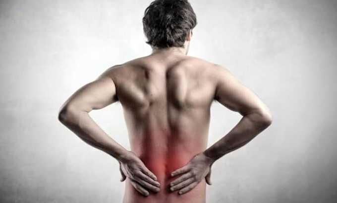 Ортофен показан при болевых ощущениях в позвоночнике