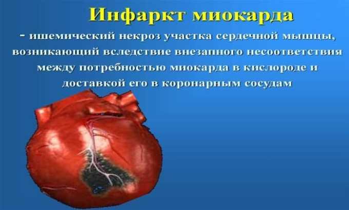 Строго запрещено назначать препарат людям с острым инфарктом сердечной мышцы