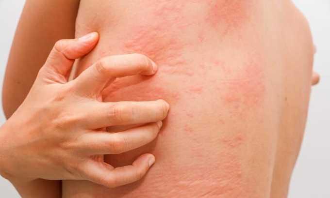 Препарат вызывает побочное явление в виде крапивницы