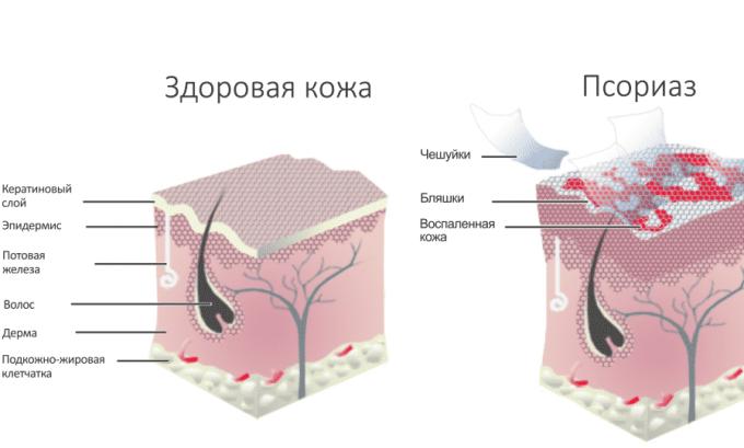 Прием препарата показан при псориазе