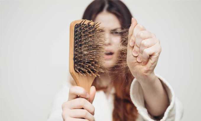 Сильное выпадение волос после родов может сигнализировать о развитии послеродового тиреоидита