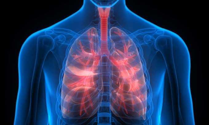 Преднизолон назначают при туберкулезе легких
