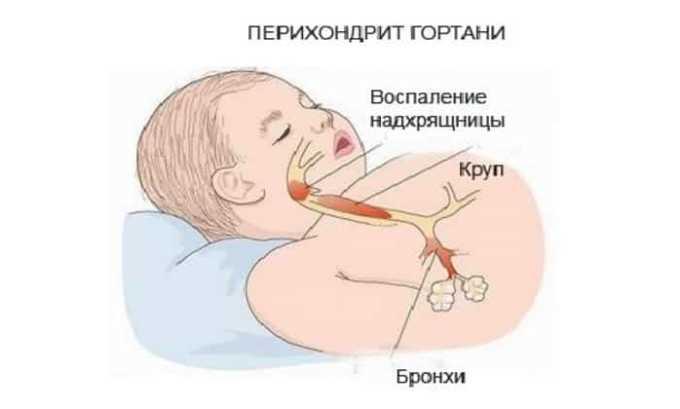 Инфекционные болезни способны вызвать перихондрит гортани