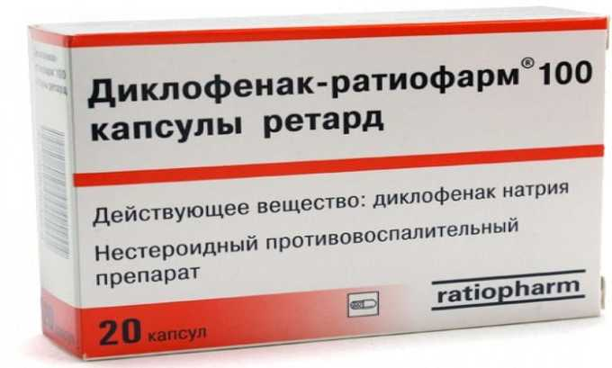 Чаще всего Деклофенак назначается при артритах и артрозах