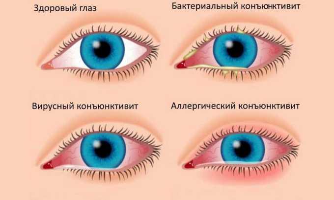 При терапии органов зрения препарат не назначается, если развилась инфекция глаза (вирусного и грибкового характера), а еще в качестве самостоятельного средства при гнойных патологических состояниях (например при ячмене)