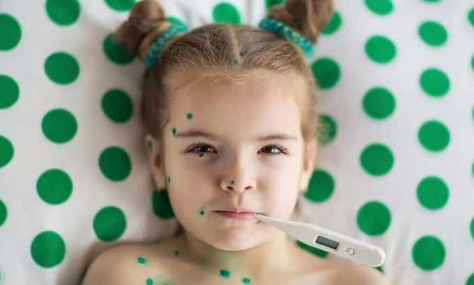 В отношении пациентов, не переболевших ветряной оспой в детстве, может понадобиться корректировка режима дозирования