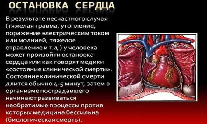 В качестве симптоматики передозировки выделяют остановку сердца