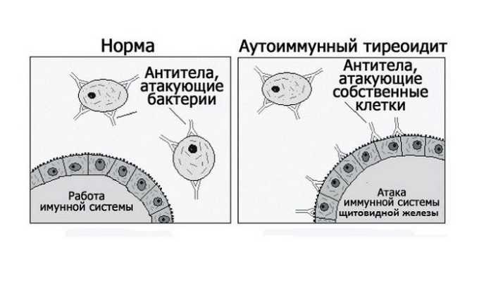 Аутоиммунный тиреоидит может вызывать отторжение сперматозоидов