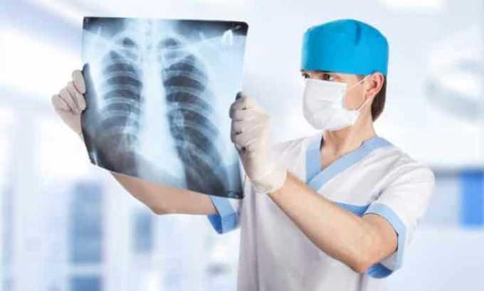Диагностика щитовидки невозможна без участия рентгенолога