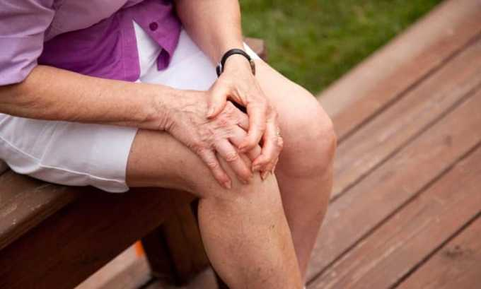 Мазь и гель можно использовать при болях в суставах
