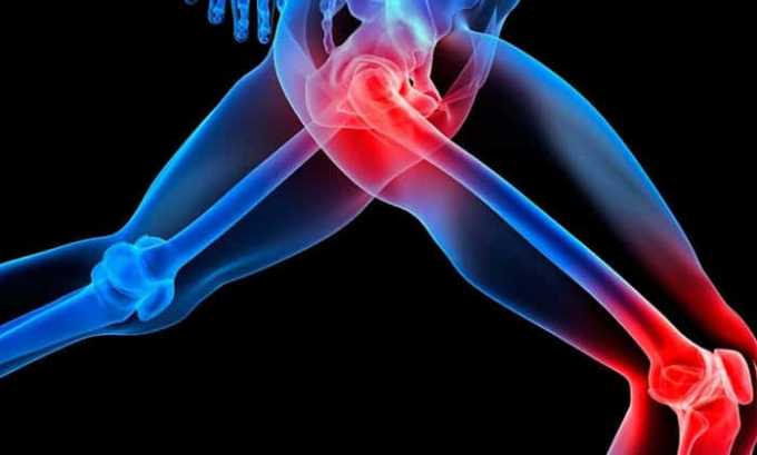 Травматические повреждения суставов и мягких тканей, сопровождающиеся отечностью лечатся мазью Вольтарен