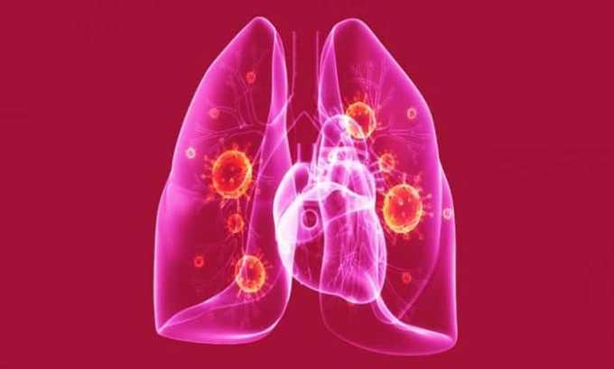 Метипред назначают при пневмонии