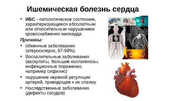 Элькар показан к применению при ишемической болезни сердца