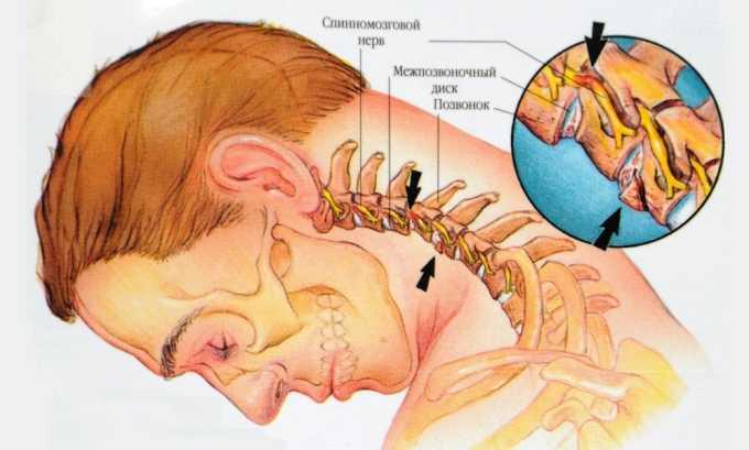 Болевые ощущения в районе щитовидного хряща вызывает развитие шейного остеохондроза