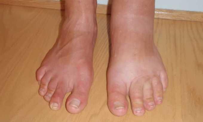 От приема препарата может быть побочное действие в виде отека ног