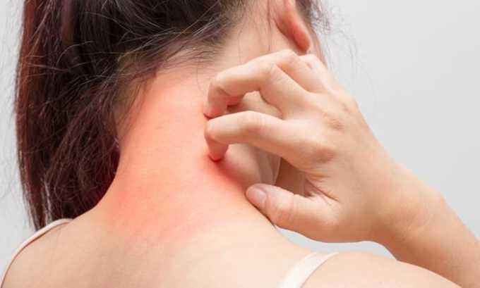 При применении лекарственного средства возможна аллергическая реакция различной степени тяжести