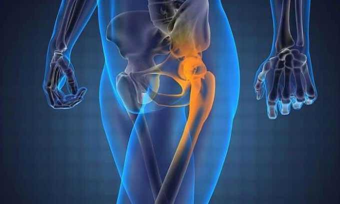 При приеме препарата могут возникнуть патологии костно-мышечной системы
