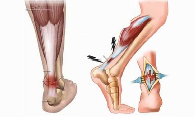 Кетонал назначают для лечения ран и растяжений мышц